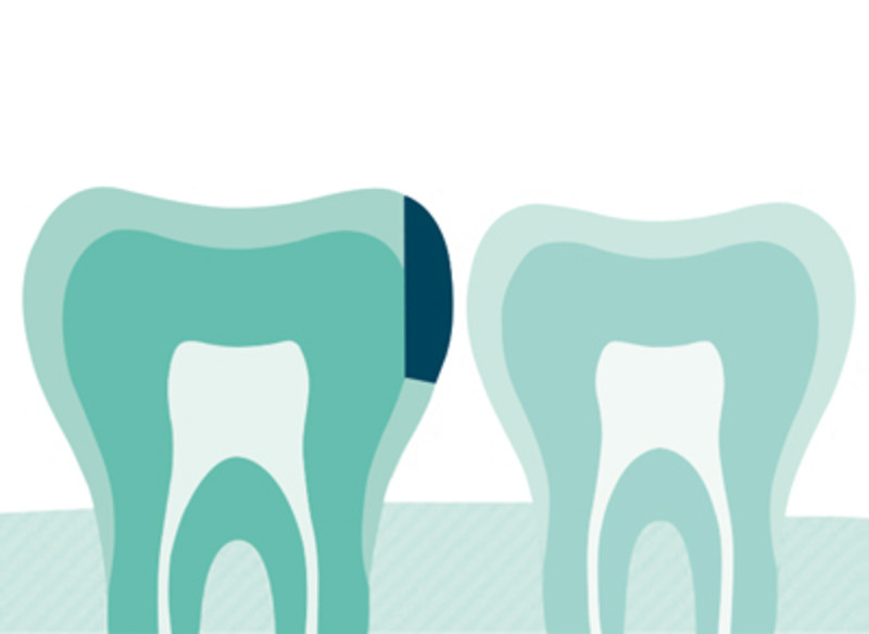 Icon - Caries Infiltration  DMG - High quality dental materials for